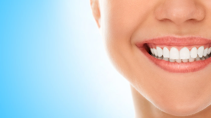 veneers-dental-clinic-palma